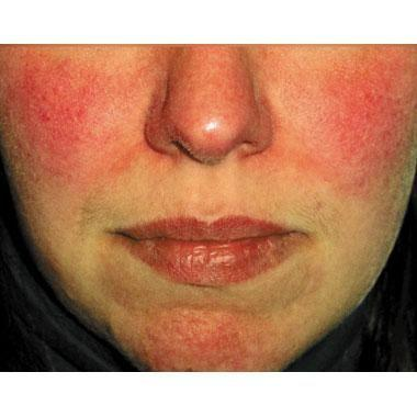 White Wine and Liquor Consumption May Increase Risk of Rosacea
