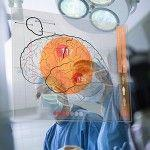 Non-Invasive Brain Surgery Boosts Quality of Life for Parkinson's Patients