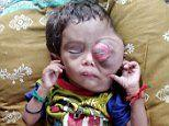 Two-year-old boy battling rare cancer risks blindness as painful mass grows over his eye