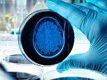 Could THIS cure Alzheimer's? New drug found to reduce plaques in the brain