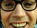 HEALTH NOTES: 10 reasons to. Get wonky teeth fixed