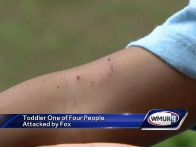 Meredith boy recovering after being attacked by possibly rabid fox