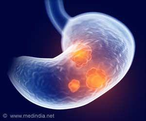 Long-term Proton Pump Inhibitor Use Associated With Stomach Cancer