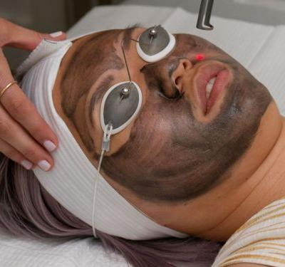 The $150 Laser Facial I Can't Stop Talking About