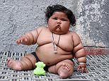 Obese baby girl Chahat Kumar's weight alarms doctors