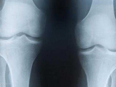 """Having """"noisy knees"""" increases your risk of developing osteoarthritis, study concludes"""