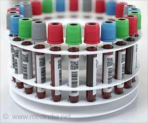 New DNA Based Blood Test Detects Early Stage Cancers