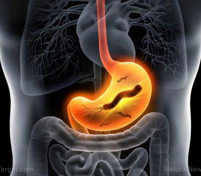 Relying on proton-pump inhibitors to relieve heartburn can leave you vulnerable to superbugs