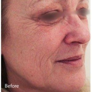 Non-Ablative INFINI Delivers Dramatic Results With No Downtime