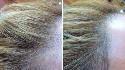 Everything You Need to Know About Microblading for Hair Loss