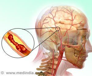 New Experimental Vaccine may Reduce Post-stroke Blood Clot Risk