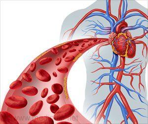 Statins Under-prescribed to Prevent Cardiac Diseases: Study