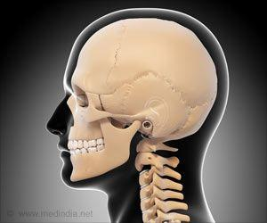 New 3D-Printed Bone may Help Create New Bone for Skull Reconstruction