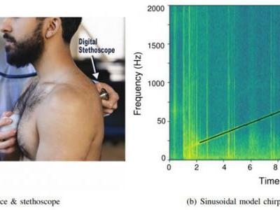 Improved Detection of Lung Fluid with Standardized Acoustic Stimulation of the Chest