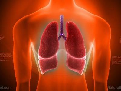 Johns Hopkins researchers find that low levels of vitamin D increase risk of lung disease
