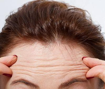 New Study Links Forehead Wrinkles to This Major Health Concern