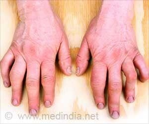 Relationships Between Rheumatoid Arthritis and Other Diseases Before and After Diagnosis