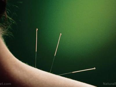 How acupuncture helps you lose weight