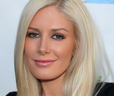 Heidi Montag Technically Died During Plastic Surgery