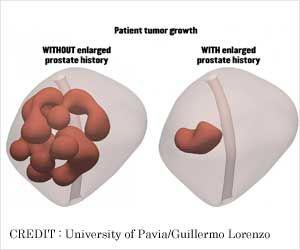Enlarged Prostate Could Stop Tumor Growth