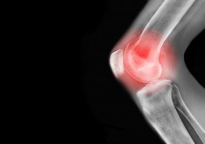 Living with arthritis - What is it, who can get it and how can you treat it?