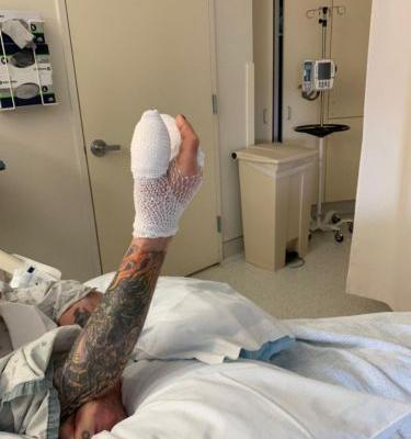 Ozzy Osbourne postpones a total of three shows following hand surgery