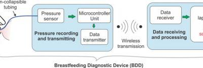 A Novel System to Measure Infants' Nutritive Sucking During Breastfeeding: the Breastfeeding Diagnostic Device