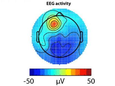 Computationally Efficient Algorithms for Sparse, Dynamic Solutions to the EEG Source Localization Problem