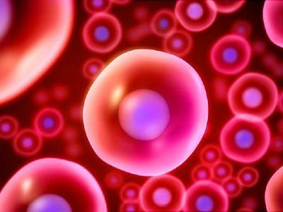 Stem Cell Transplant May Help Some Aggressive MS