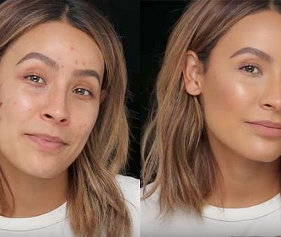 These Are the Only Hacks You Need to Make Broken-Out Skin Look Airbrushed
