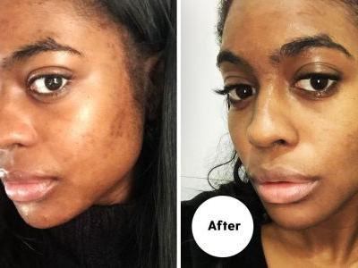 I'm Convinced These Acid-Based Products Helped Fade My Dark Spots