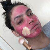 Watch This Beauty Blogger Apply Fenty Foundation Over Her Severe Acne