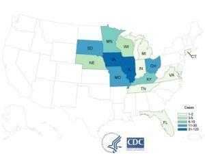 FDA weighs in on expanding Cyclospora outbreak linked to Fresh Express