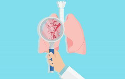 Who Really Should Get Screened For Lung Cancer?