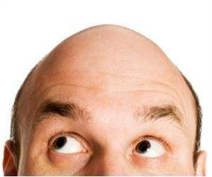 Genetic Markers Linked To Baldness in Men