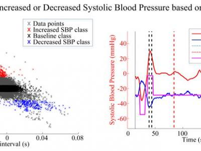 Unobtrusive Detection of Simulated Orthostatic Hypotension and Supine Hypertension using Ballistocardiogram and Electrocardiogram of Healthy Adults