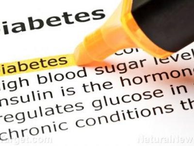Experts warn there is a new variant to metabolic problems: Type 3c diabetes is being misdiagnosed, which is why many aren't responding to treatment