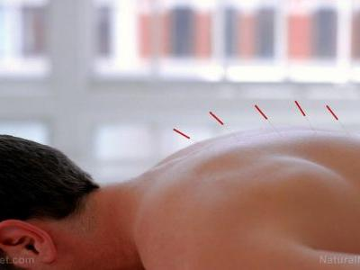 Acupuncture at the Si Guan Xue shown to be a powerful pain relief treatment for cancer patients