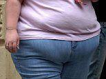 Obesity set to overtake smoking as the most common cause of preventable cancer for women