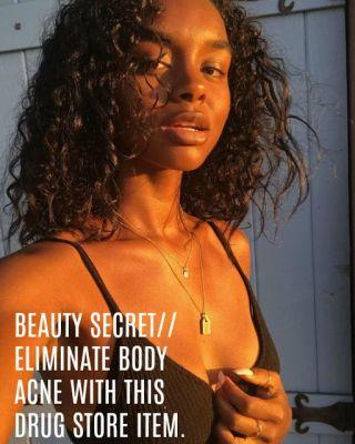 Get Rid of Body Acne + Guess Which Body Butter Evens Out Your Skin