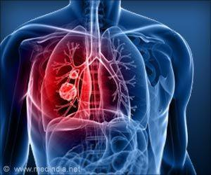 Link Between Patient Anxiety, Depression and Lung Cancer Survival Rates