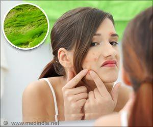 Severe Acne May Affect People's Overall Quality Of Life: Study