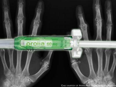 Can Targeting RANKL in RA Heal Erosions?