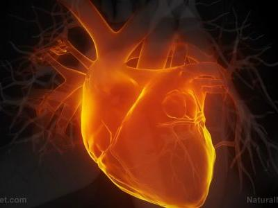 Heart surgery is twice as risky for women; aortic surgery outcomes have higher risk of complications, stroke compared to men