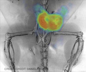 Prostate Cancer Treatment Using New Imaging Technique